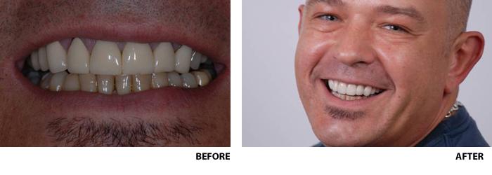 ceramic crown teeth