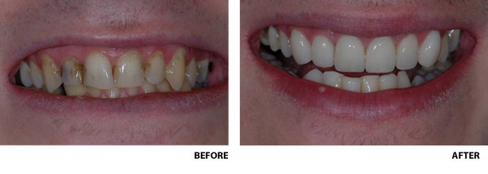 veneers, crowns, porcelain inlays